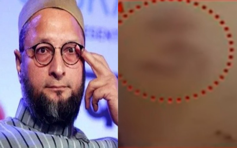 "Asaduddin Owaisi reacts after ""Om symbol"" imprinted on Muslim prisoner's back in Tihar jail"
